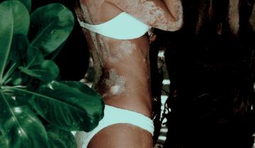 Reizdarmsyndrom: Vitamin D kann Blähungen vertreiben